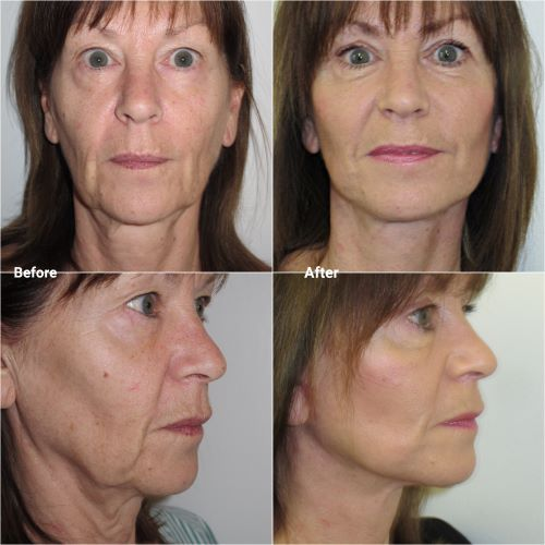 facelift in 60 year old by Mr Jag chana