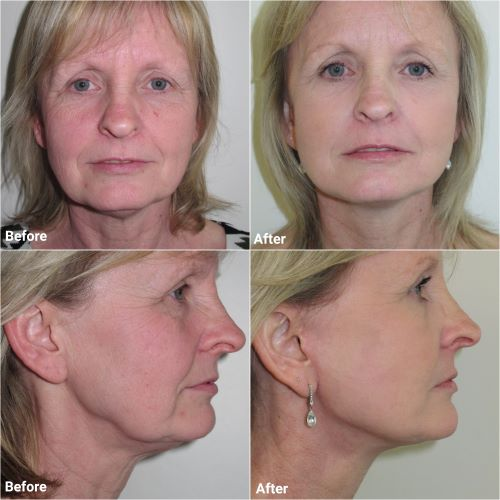 facelift with upper and lower belpharoplasty jag chana