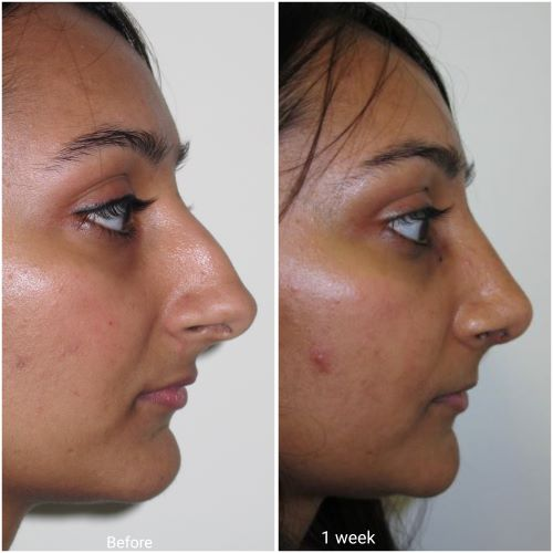 Ultrasonic rhinoplasty result at 1 week by Jag Chana
