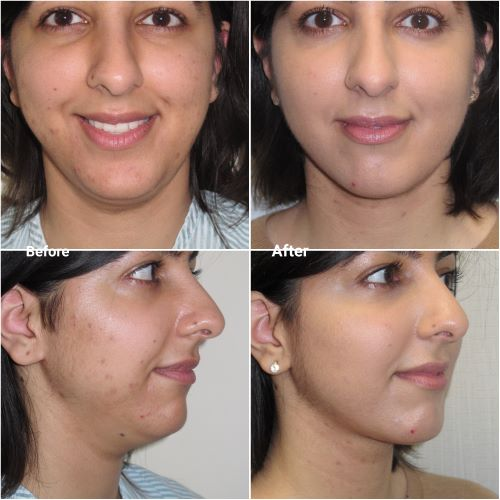 VASER lipo to chin and neck