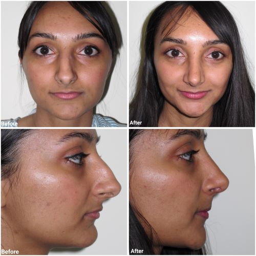 ultrasonic rhinoplasty before and after by Jag Chana