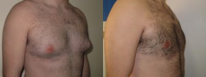 gynaecomastia before and after