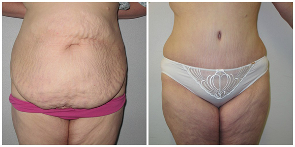 Brazilian Abdominoplasty with Mr Jag Chana