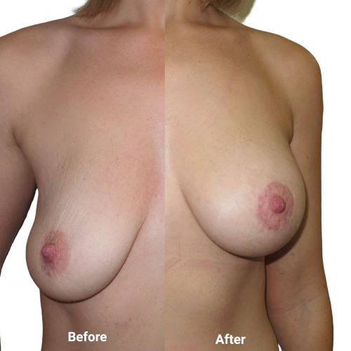 Breast uplift with implants | circumareolar lift | 315cc anatomical teardrop implants