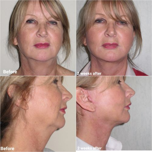 facelift with submental liposuction 2 week receovery jag chana