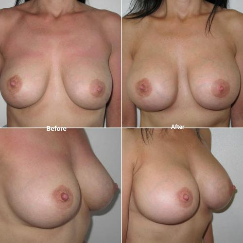 Breast implant exchange from 260cc to 460cc