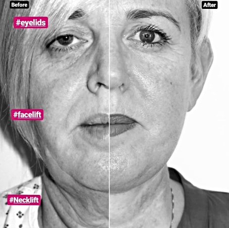 facelift with necklift and blepharoplasty